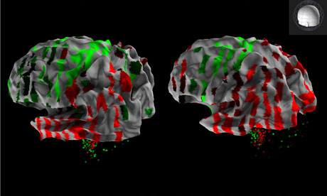 3D rendering from the Allen Human Brain Atlas