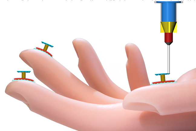 """A one-of-a-kind 3D printer built at the University of Minnesota can print touch sensors directly on a model hand. Credit: Shuang-Zhuang Guo and Michael McAlpine, University of Minnesota, """"3D Printed Stretchable Tactile Sensors,"""" Advanced Materials. 2017. (credit: Wiley-VCH Verlag GmbH & Co. KGaA. )"""