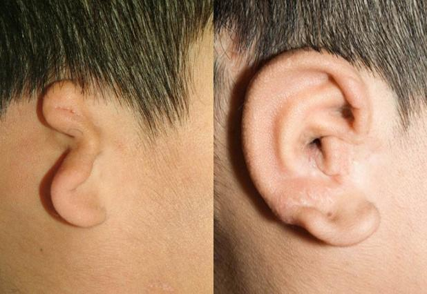 Children with under-formed or missing ears can undergo surgeries to fashion a new ear from rib cartilage, as shown in the above photo. But aspiring surgeons lack lifelike practice models. (credit: University of Washington)