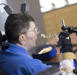 Bill Kochevar, who was paralyzed below his shoulders in a bicycling accident, is first person with quadriplegia in the world to have arm and hand movements restored without robot help (credit: Case Western Reserve University/Cleveland FES Center)