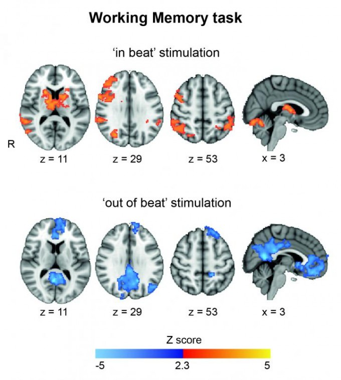 The scans show that stimulation 'in beat' increases brain activity in the regions involved in task performance. On the other hand, stimulation 'out of beat' showed activity in regions usually associated with resting. (credit: Ines Violante)