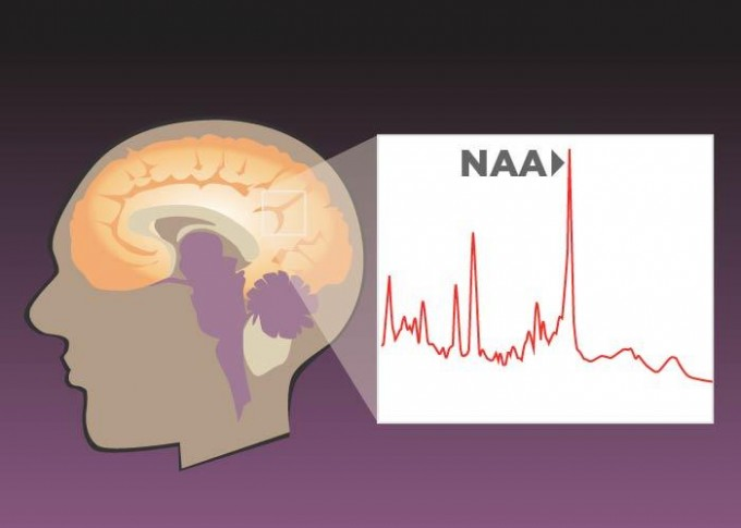 A new study found that higher concentrations of NAA (N-acetyl aspartate) in the medial parietal and posterior cingulate cortices of the brain were associated with better performance on verbal and spatial tests. NAA is a byproduct of glucose metabolism and an indicator of brain health. (credit: Graphic by Julie McMahon and Erick Paul)