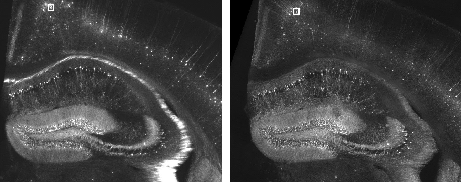 Expanding The Brain Achieves Super Resolution With