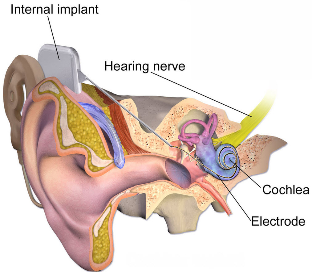 A future cochlear implant with no exterior hardware required | Kurzweil