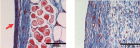 These images show differences in collagen build-up in two tissue samples. Collagen is labeled in blue. The left image shows a thick collagen wall forming in the presence of a material that's widely used for implantable devices. In contrast, collagen in the right image is more evenly dispersed in the tissue after the UW-engineered hydrogel has been implanted. (Credit: Lei Zhang/University of Washington)