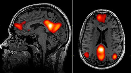 MRI scan showing regions of the default mode network (CC)