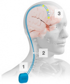 Deep brain stimulation (credit: Parkinson's UK)