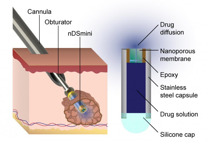 This diagram describes how the device Dr. Hood helped to develop is implanted into a cancerous tumor. (credit: Lyle Hood/UTSA)