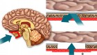 Drug-Delivery-across-Blood-Brain-Barrier-ft