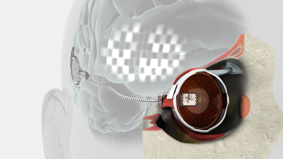 Early bionic eye prototype drawing (credit: Bionics Institute)