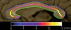 Albert Einstein's corpus callosum. Color codes indicate the varying thicknesses of subdivisions of the corpus callosum (credit: Men et al./Brain)