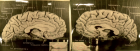 Photographs of the left and right midsagittal sections of Einstein's brain with original labels (Falk et al., 2013), reproduced here with permission from the National Museum of Health and Medicine, Silver Spring, MD. The red circles indicate two breaches on each<br /> hemisphere of Einstein's corpus callosum that have different shapes, which may have been introduced when the two hemispheres were<br /> separated in 1955.