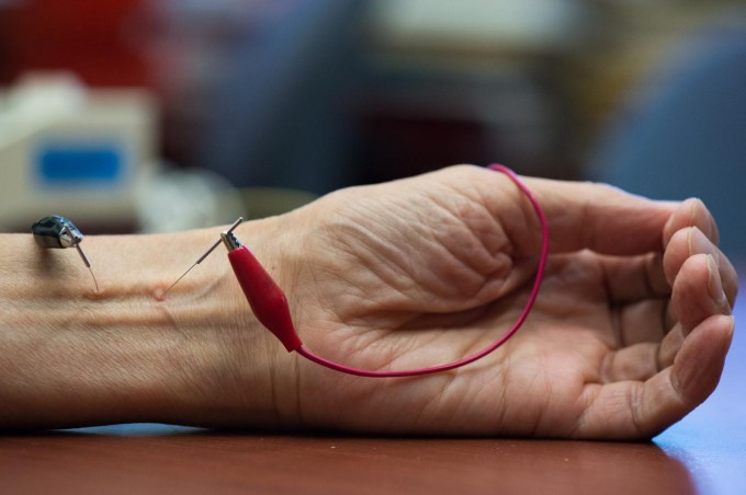 The UCI study shows that repetitive electroacupuncture evokes a long-lasting action in lowering blood pressure in hypertension. (credit: Chris Nugent / UCI)