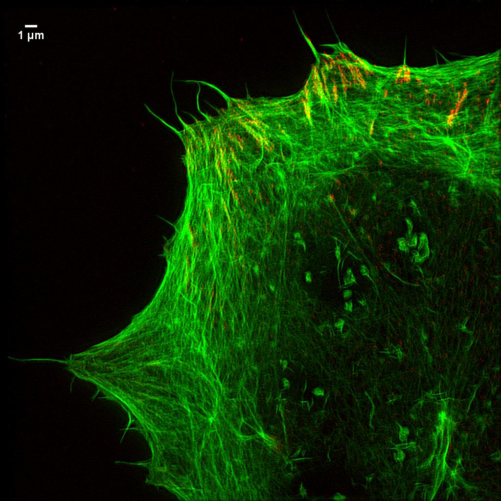 Focal adhesions and actin-jpeg