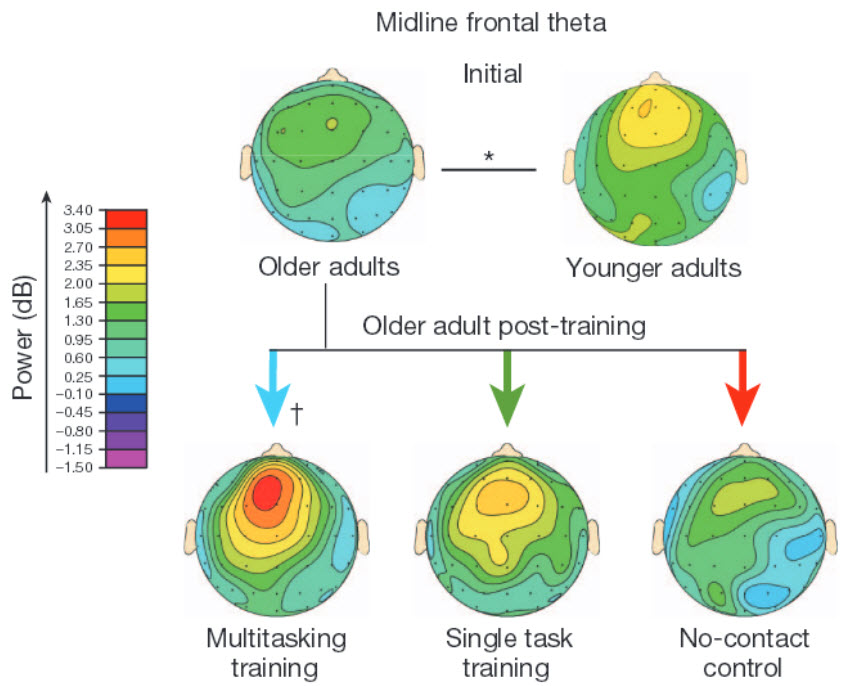 Training the older brain in 3d video game enhances cognitive eeg recordings ccuart Gallery