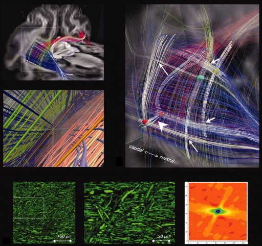 Grid structure of cerebral pathways (credit: Science)