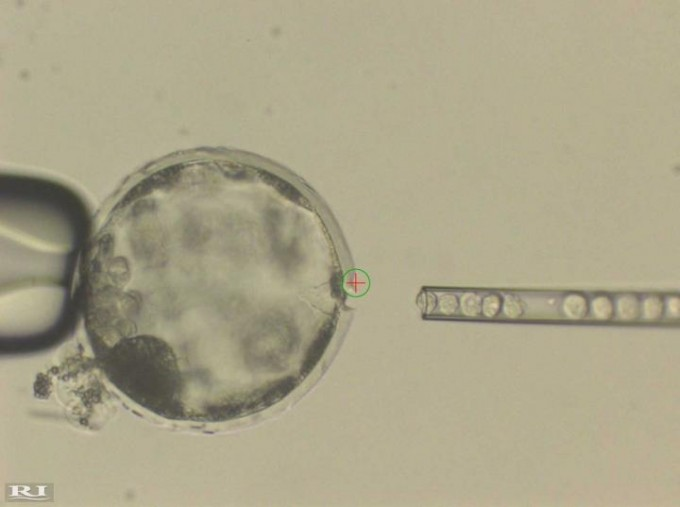 This photograph shows injection of human iPS cells into a pig blastocyst. A laser beam (green circle with a red cross inside) was used to perforate an opening to the outer membrane (Zona Pellucida) of the pig blastocyst to allow easy access of an injection needle delivering human iPS cells. (credit: Courtesy of Juan Carlos Izpisua Belmonte)