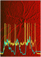 In the background is an entorhinal cortex neuron that was studied. The blue-green trace shows neocortical slow oscillation while the yellow trace shows the persistent activity of entorhinal cortical neuron, even when the inputs from neocortex were silent. (Credit: Thomas T. G. Hahn, et al/UCLA)