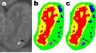 These are images of a slice of mouse lymphblastoid cells; a. is the raw data, b is the corresponding manual segmentation and c is the output of an MS-D network with 100 layers. (credit: Data from A. Ekman and C. Larabell, National Center for X-ray Tomography.)