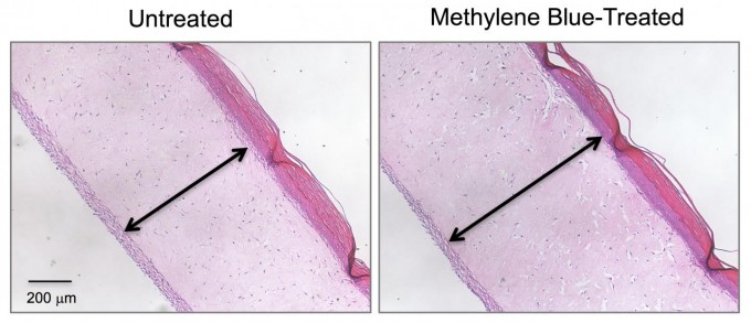 These cross-section images show three-dimensional human skin models made of living skin cells. Untreated model skin (left panel) shows a thinner dermis layer (black arrow) compared with model skin treated with the antioxidant methylene blue (right panel). A new study suggests that methylene blue could slow or reverse dermal thinning (a sign of aging) and a number of other symptoms of aging in human skin. (credit: Zheng-Mei Xiong/University of Maryland)