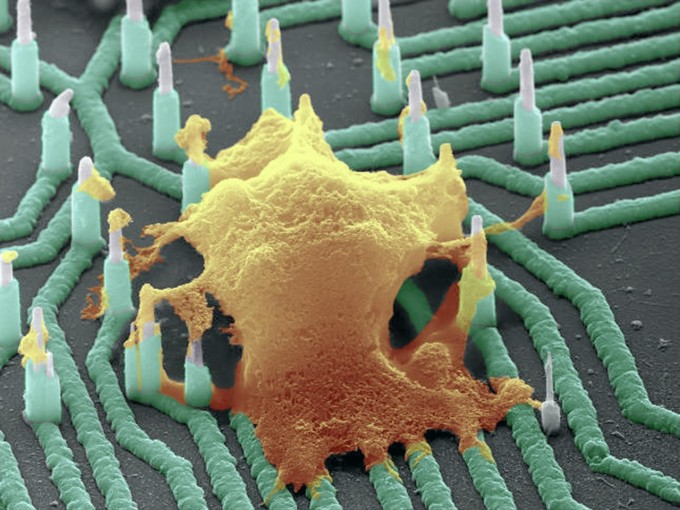 This is a colorized SEM image of a neuron (orange) interfaced with the nanowire array. (credit: Integrated Electronics and Biointerfaces Laboratory, UC San Diego)