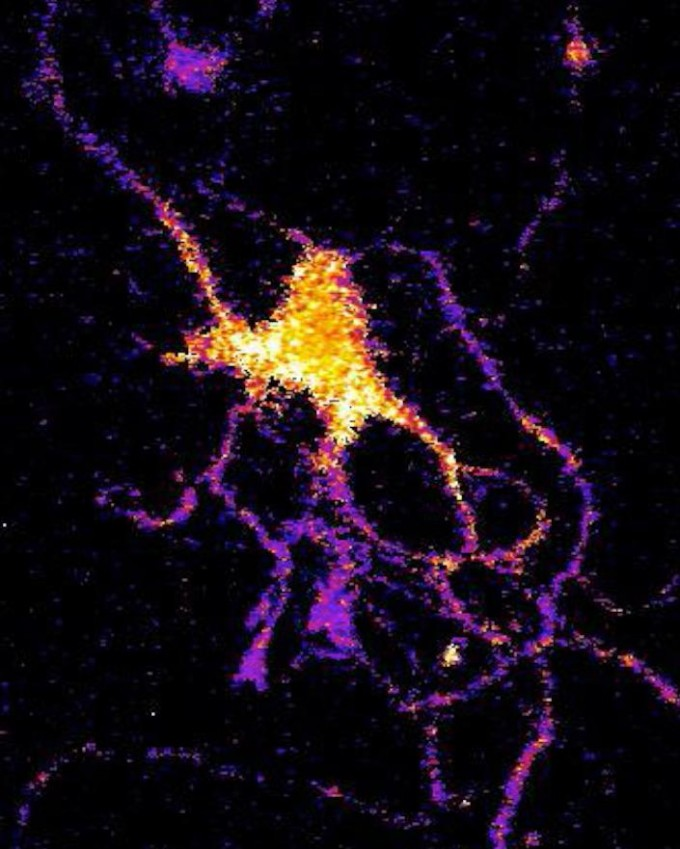 Individual neuron glowing with bioluminescent light produced by a new genetically engineered sensor. (credit: Johnson Lab, Vanderbilt University)