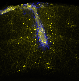 Neuronal transplants (blue) connect with host neurons (yellow) in the adult mouse brain in a highly specific manner, rebuilding neural networks lost upon injury. Picture: Sofia Grade (credit: LMU/Helmholtz Zentrum München)