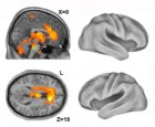 This image shows one returning from oblivion -- imaging the neural core of consciousness. Positron emission tomography (PET) findings show that the emergence of consciousness after anesthesia is associated with activation of deep, phylogenetically old brain structures rather than the neocortex. Left: Sagittal (top) and axial (bottom) sections show activation in the anterior cingulate cortex (i), thalamus (ii) and the brainstem (iii) locus coeruleus/parabrachial area overlaid on magnetic resonance image (MRI) slices. Right: Cortical renderings show no evident activations (credit: Turku PET Center)