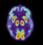 PET scan of the brain of a person with AD showing a loss of function in the temporal lobe (credit: Wikimedia Commons)