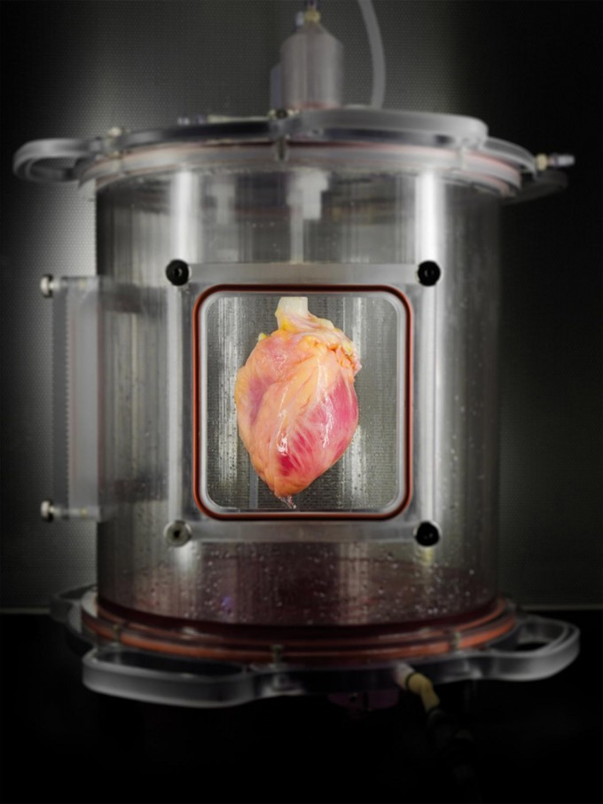 A partially recellularized human whole-heart cardiac scaffold, reseeded with human cardiomyocytes derived from induced pluripotent stem cells, being cultured in a bioreactor that delivers a nutrient solution and replicates some of the environmental conditions around a living heart. (credit: Bernhard Jank, MD, Ott Lab, Center for Regenerative Medicine, Massachusetts General Hospital)