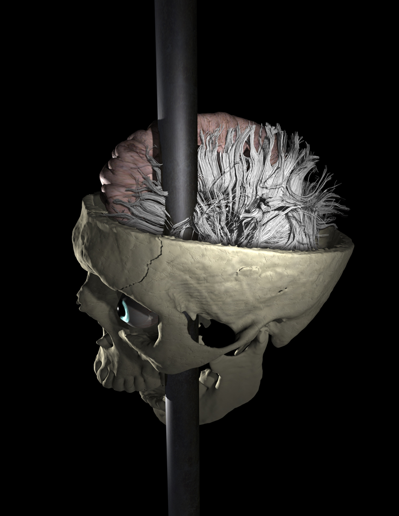 Reconstruction of Gage's skull and brain tissue