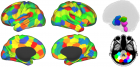 Parcellation of brain data into 194 cortical, subcortical and cerebellar ROIs.