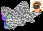 Ten healthy subjects wearing blindfolds were given  solely auditory stimulation in the absence of visual stimulation. In a separate session, retinotopic mapping was performed for all subjects to define early visual areas of the brain. Sound-induced blood-oxygen-level-dependent activation patterns from these regions of interest (ROIs) were fed into a multivariate pattern analysis. (Credit: Petra Vetter, Fraser W. Smith, nd Lars Muckli/Current Biology)