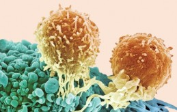 Two T lymphocyte cells (orange) attack a cancer cell (blue), using special receptors to zero in on the cancer. (credit: Science Source)