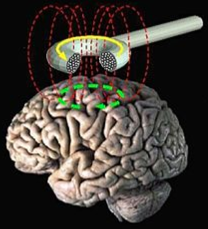 New forms of brainwashing include transcranial magnetic stimulation (TMS) to neuromodulate the brain regions responsible for social prejudice and political and religious beliefs, say researchers (credit: U.S. National Library of Medicine)