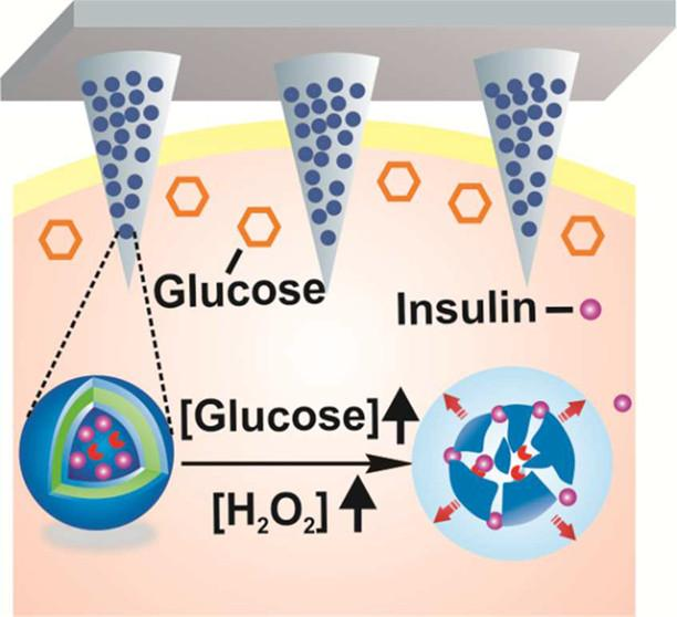 Tiny, painless microneedles on a patch can deliver insulin in response to rising glucose levels. (credit: American Chemical Society)