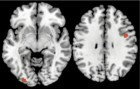 New brain imaging research from Carnegie Mellon University provides some of the first evidence showing how the brain unconsciously processes decision information in ways that lead to improved decision making. Published in the journal Social Cognitive and Affective Neuroscience, the study found that the brain regions responsible for making decisions continue to be active even when the conscious brain is distracted with a different task. This image shows unconscious activity in two parts of the brain, the left visual cortex and right prefrontal cortex. (Credit: Carnegie Mellon University)
