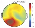 Topographic map of alpha wave power in the left hemisphere of the brain in the 800 milliseconds before a decision significantly influences the decision (credit: Jesse J. Bengson et al./Journal of Cognitive Neuroscience)