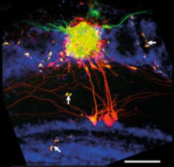 The researchers tested the NEM technique with a specific microcircuit, the olfactory bulb glomerulus (which detects smells). They were able to identify detailed, long-range, complex anatomical features (scale bars=100micrometers). (credit: D. Schwartz et al./Nature Communications)
