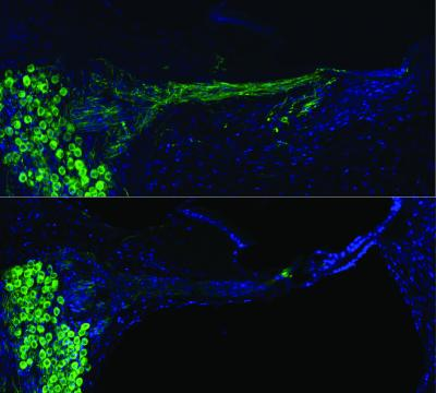 auditory-nerves-after-gene-therapy