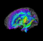 Image of white matter pathways extracted from diffusion tensor imaging data for infants at-risk for autism. Warmer colors represent higher fractional anisotropy (credit: Montreal Neurological Institute and Hospital, McGill University)