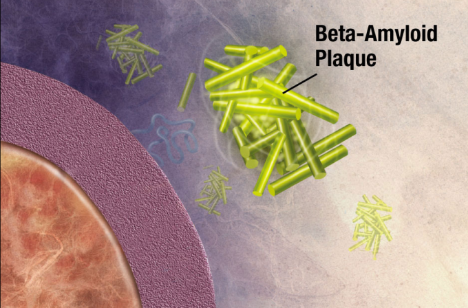 Illustration of formation of beta-amyloid plaques. Enzymes act on the APP (amyloid precursor protein) and cut it into fragments. The beta-amyloid fragment is crucial in the formation of senile plaques in Alzheimer's disease. (credit: National Institute on Aging/NIH)