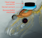 Cartoon illustration of a four-channel bioresorbable electrode array implanted on the left hemisphere of the brain of a rat for chronic recordings. A flexible cable connects the array to a custom-built circular interface board fixed to the skull using dental cement. (credit: Ki Jun Yu et al./Nature Materials)