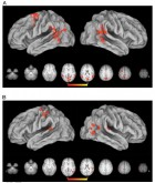 Planning and execution phase responses in the MT. Significant results were mapped to a 3-D brain using CARET's Population-Average, Landmark- and Surface-based atlas using the Average Fiducial Mapping algorithm. (A) Relative to resting baseline, both types of action planning were associated with significant increases in occipital cortex, extending dorsally into the medial superior parietal lobule, left premotor cortex, bilateral TPJ, and cMTG. (B) During movement execution, grasp-related increases in activity were found near the intersection of the IPS and postcentral sulcus contralateral to the hand involved. (Credit: Scott H. Frey et al./ Journal of Cognitive Neuroscience)