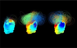 Brain networks in two behaviourally-similar vegetative patients (left and middle), but one of whom imagined playing tennis (middle panel), alongside a healthy adult (right panel) (Credit: Srivas Chennu)