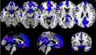 Distributed voxel patterns that best distinguished between tenderness/affection vs. pride within the neurofeedback group, measured across all fMRI sessions. The color range shows voxels present in at least 40% (blue) or above 66% (red-yellow) of the subjects. (Credit: Jorge Moll et al./PLOS ONE)