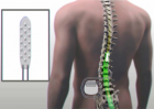 Electrical stimulation of the spinal cord (credit: Mayo Clinic)