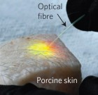 Massachusetts General Hospital investigators have induced subcutaneous fat cells in a piece of skin from a pig to emit laser light in response to energy delivered through an optical fiber (credit: Matjaž Humar, PhD, and Seok Hyun Yun, PhD, Wellman Center for Photomedicine, Massachusetts General Hospital)