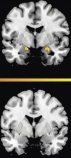 Amygdala activity predicts return of fear and correlates with recall of fear. (A) In the 6 hours group (top), activity in the amygdala (where fear memories are stored) predicted return of fear 2 days later.  In the 10 min group (bottom), an area in the right temporal claustrum extending into the amygdala was also related to SCR (x, y, z = 33, 2, –23; Z = 2.49; P = 0.006; 324 mm3). Because fear did not return in the 10 min group, the correlation may reflect individual brain-behavior relations unrelated to fear and the experimental manipulation. (B) In the 6 hours group (top), recall of fear during extinction covaried with the strength of amygdala activity bilaterally (x, y, z = 24, –1, –20; Z = 2.35; P = 0.009; 378 mm3; x, y, z = –15, 4, –17; Z=2.27; P = 0.012; 189mm3). No covariation existed in the 10min group (bottom).(Credit: T. Agren, J. Engman, A. Frick, J. Bjorkstrand, E.-M. Larsson, T. Furmark, M. Fredrikson/Science)