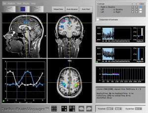 fMRI images